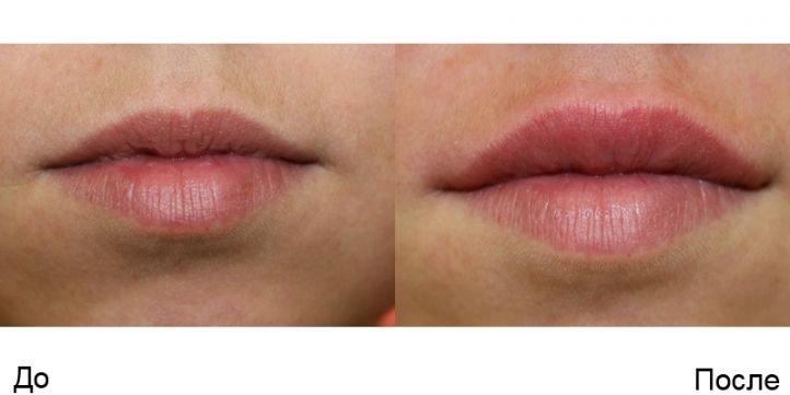 Сколько стоит уменьшение половых губ